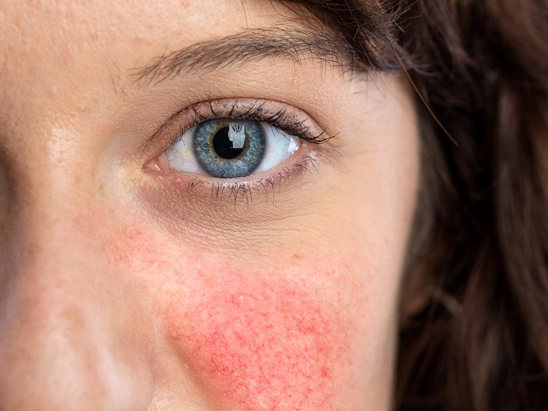 Avantages du traitement de la rosacée et de la couperose au laser