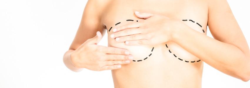 Chirurgie mammaire à Lausanne