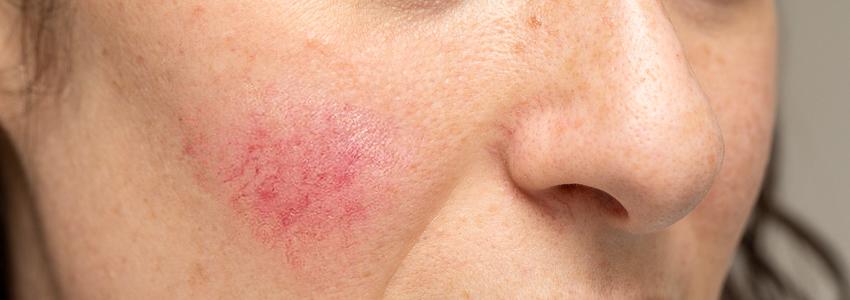 Symptômes de la rosacée et de la couperose