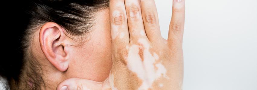 Traitement contre le vitiligo à Lausanne