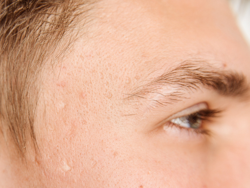 cicatrices acné