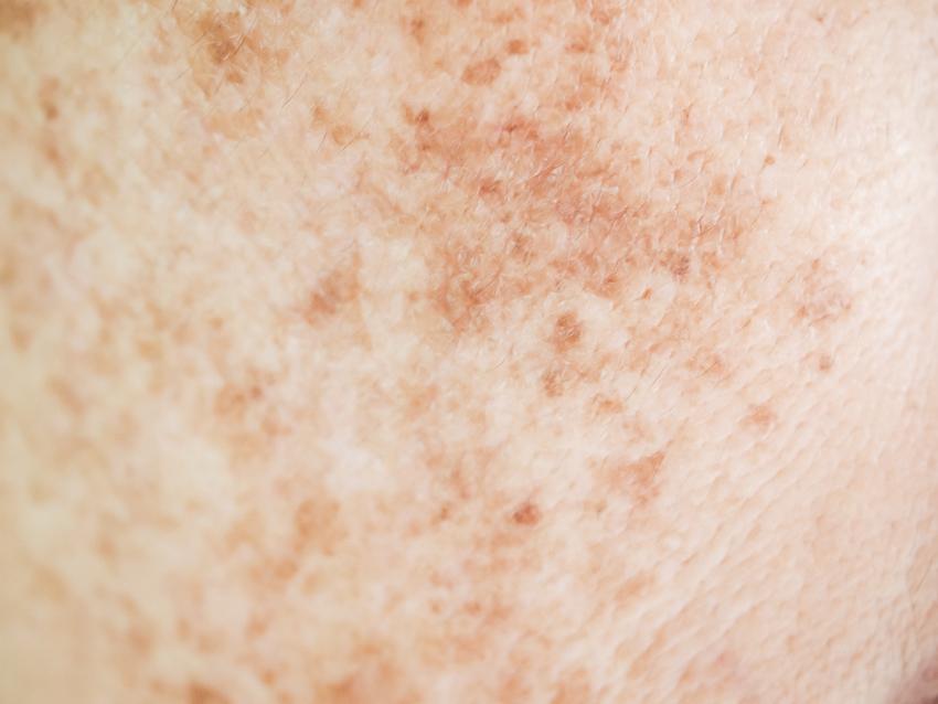 Melasma tache peau