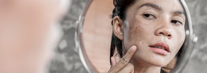 Melasma dermatologie