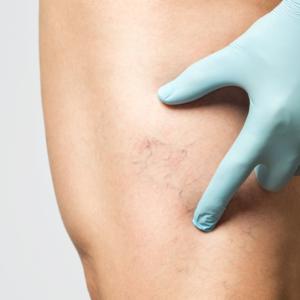 Dermatologie médicale et phlébologie