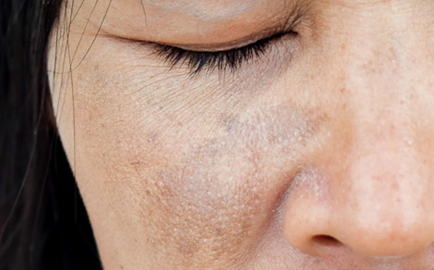 Melasma peau dermato