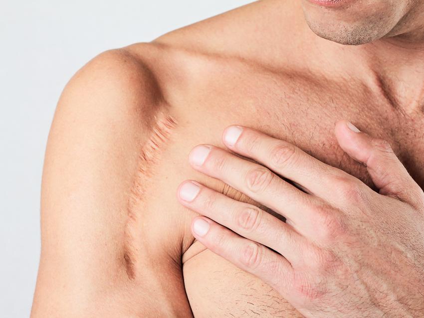 Homme cicatrice bras