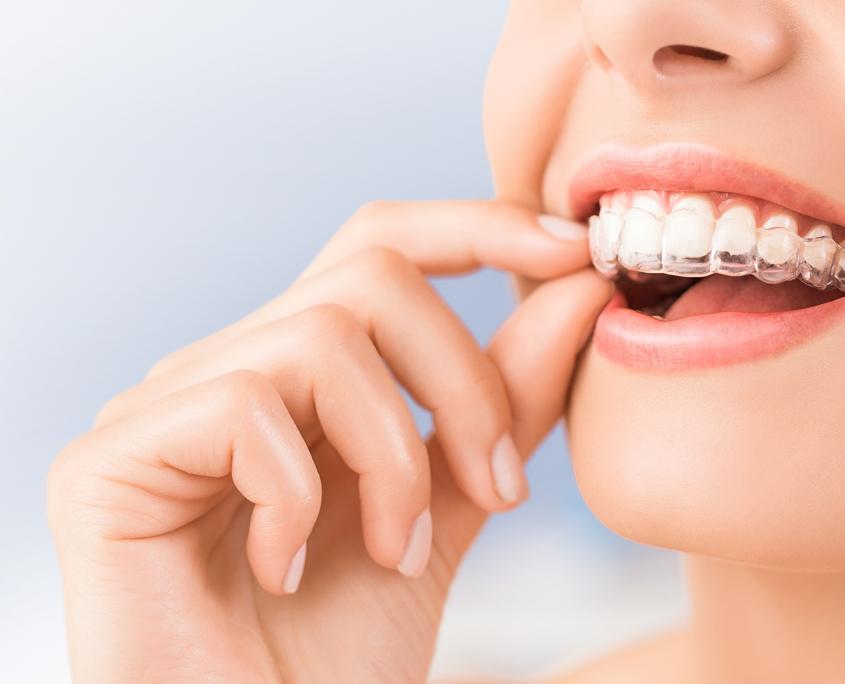 Dentisterie - gouttières