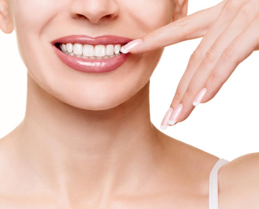 Facettes dentaires à Lausanne