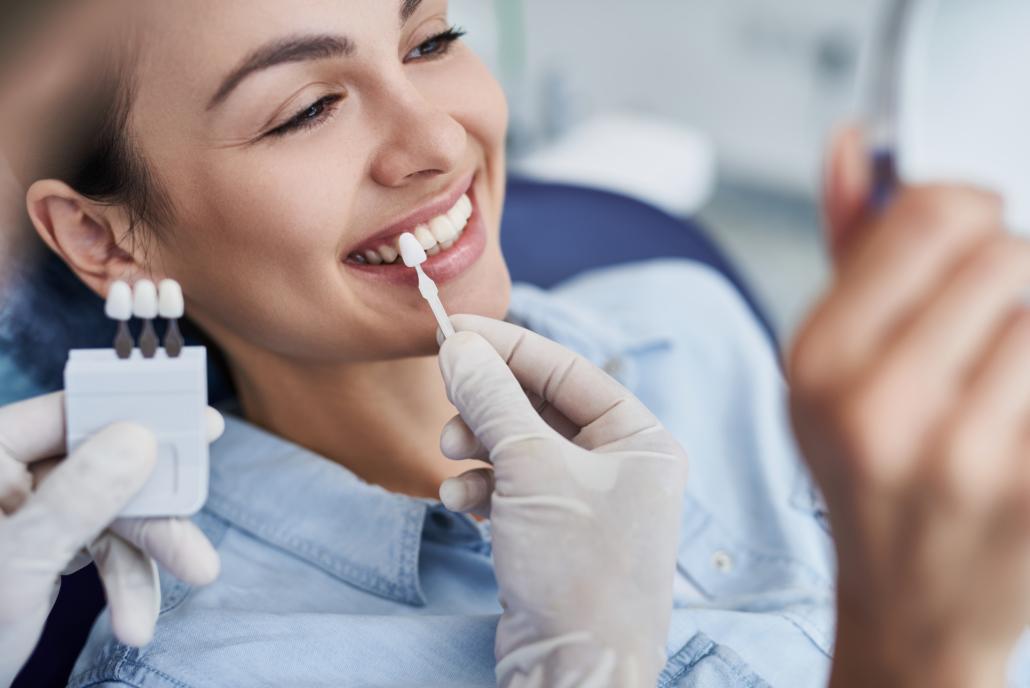 Fonctionnement des facettes dentaires