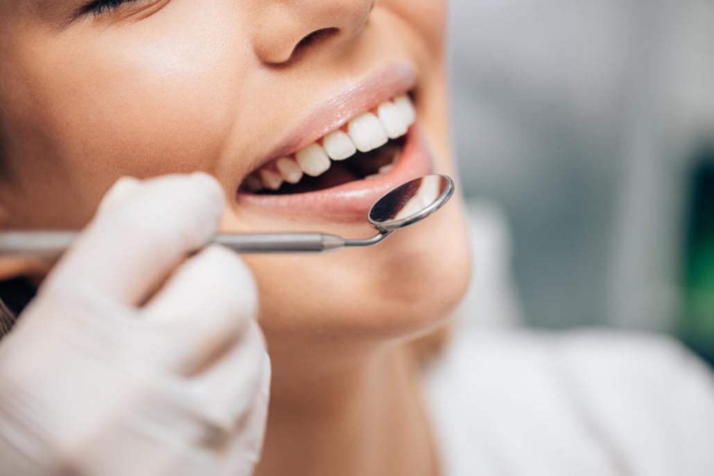 Résultats après pose de facettes dentaires